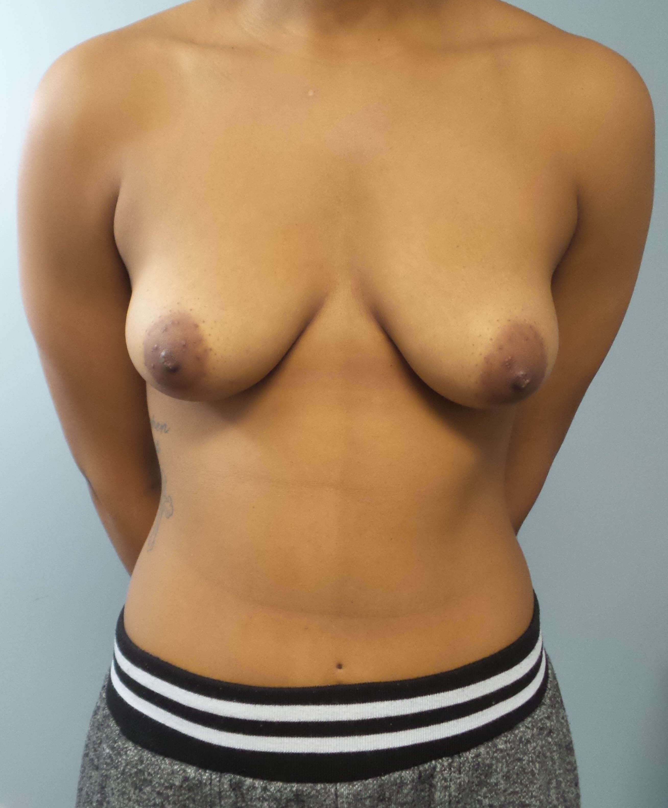 Breast Augmentation Surgery Before Front View