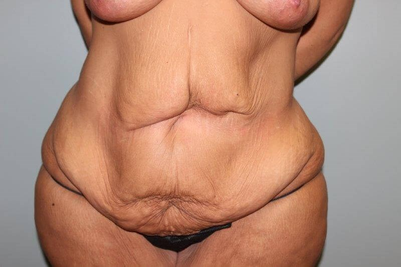 Tummy Tuck after weight loss Before Front View