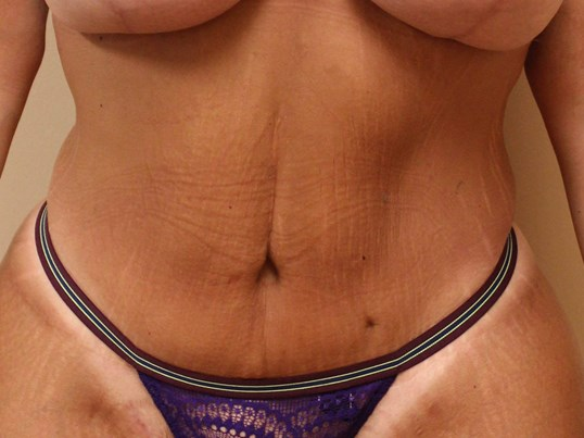 Tummy Tuck after weight loss After Front View
