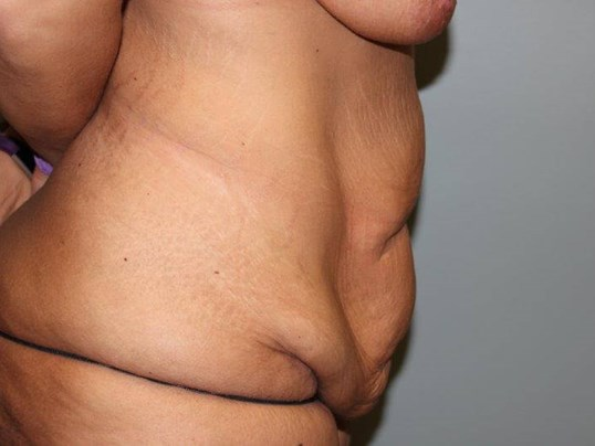Tummy Tuck after weight loss Before Side View