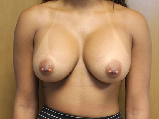 Breast Augmentation Surgery After Front View