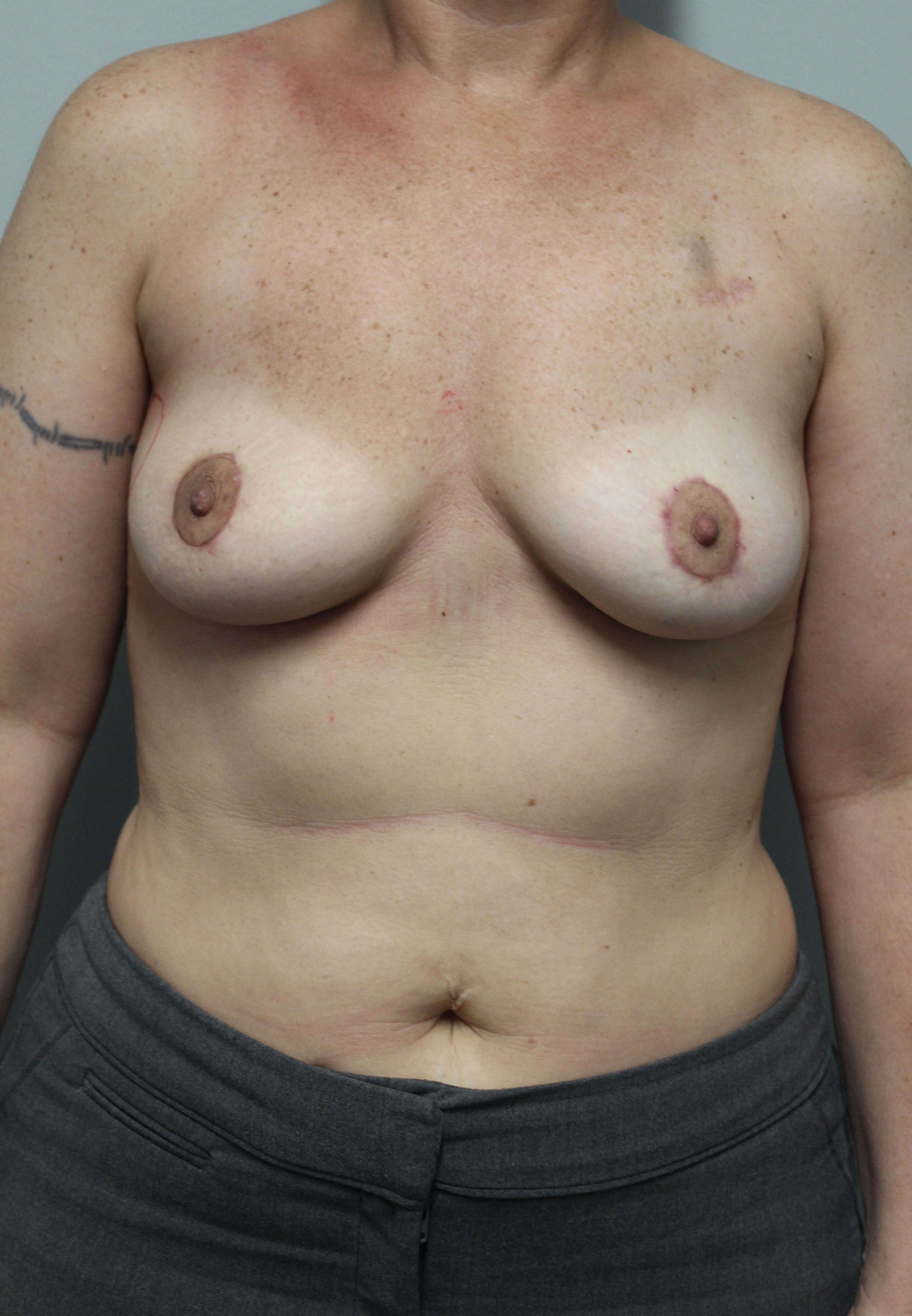 Breast Reconstruction Surgery After