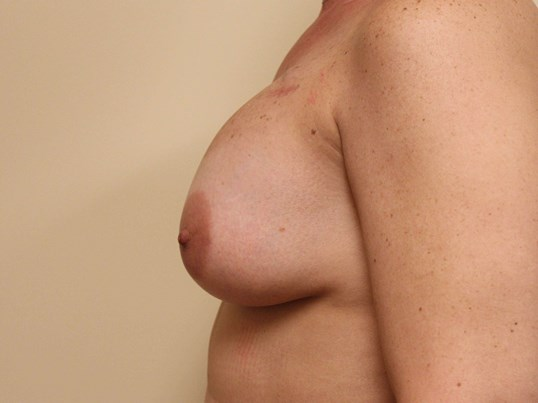 Breast Reconstruction Surgery Before