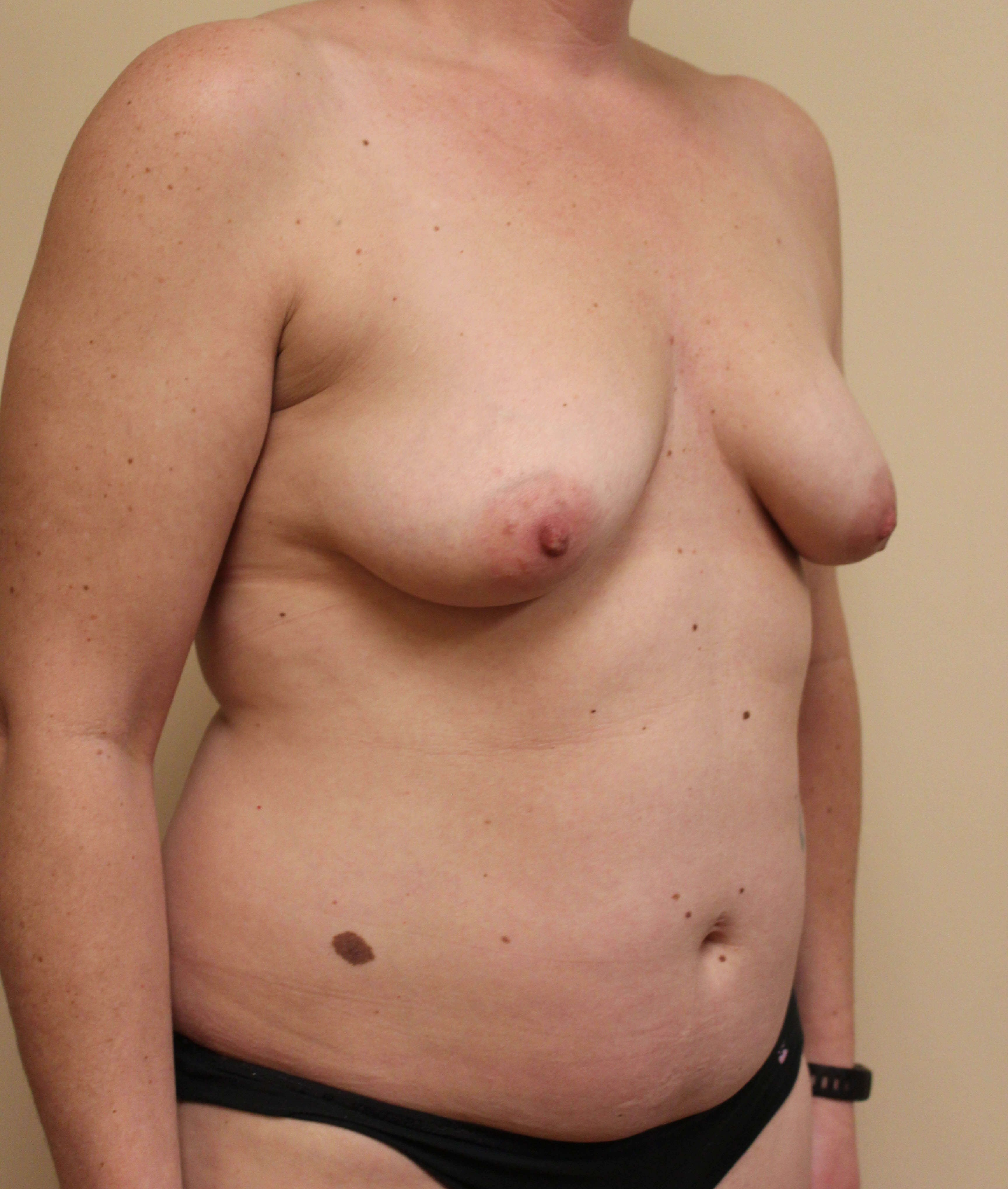 Breast Reconstruction Before