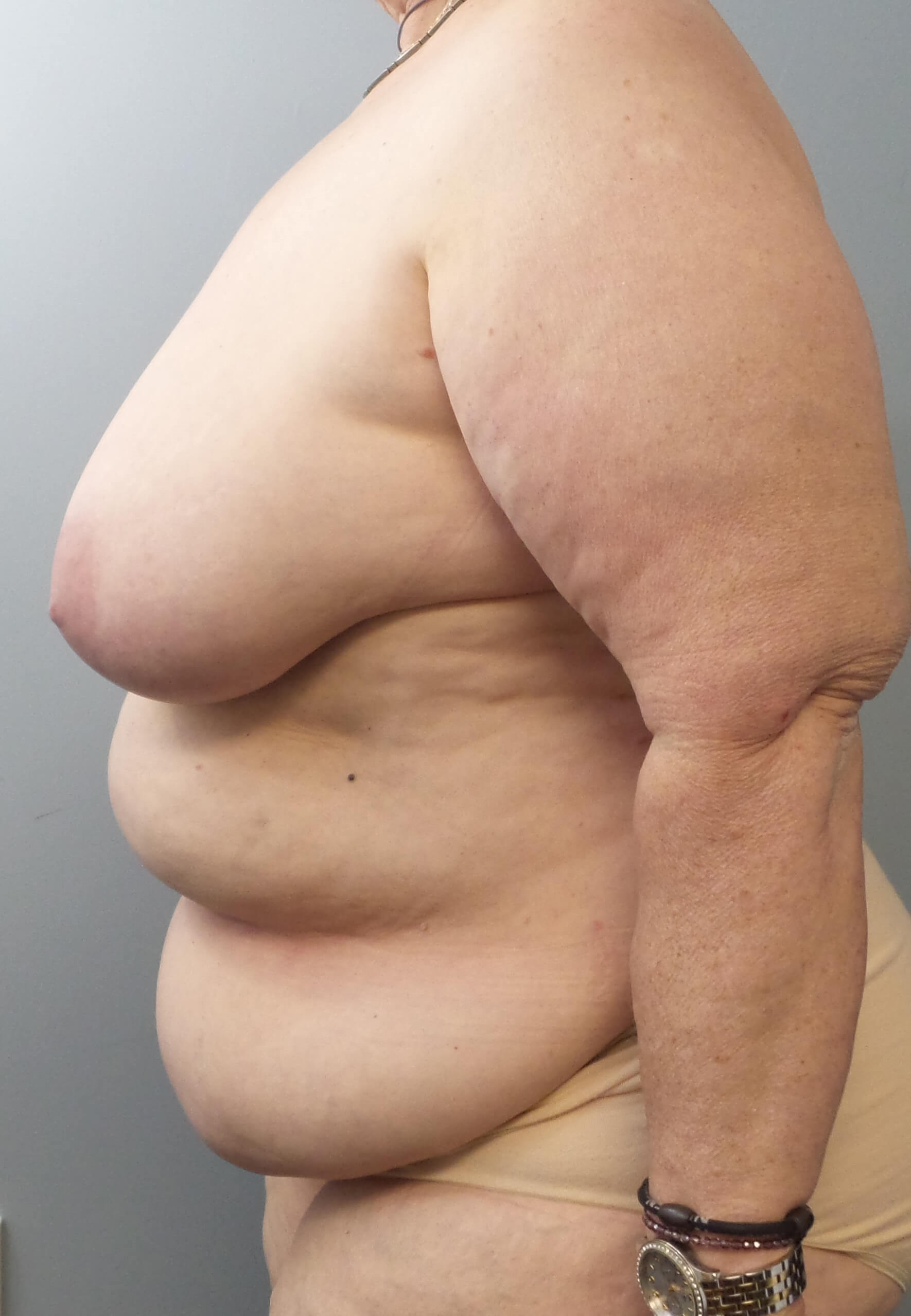 DIEP Flap Breast Surgery Before