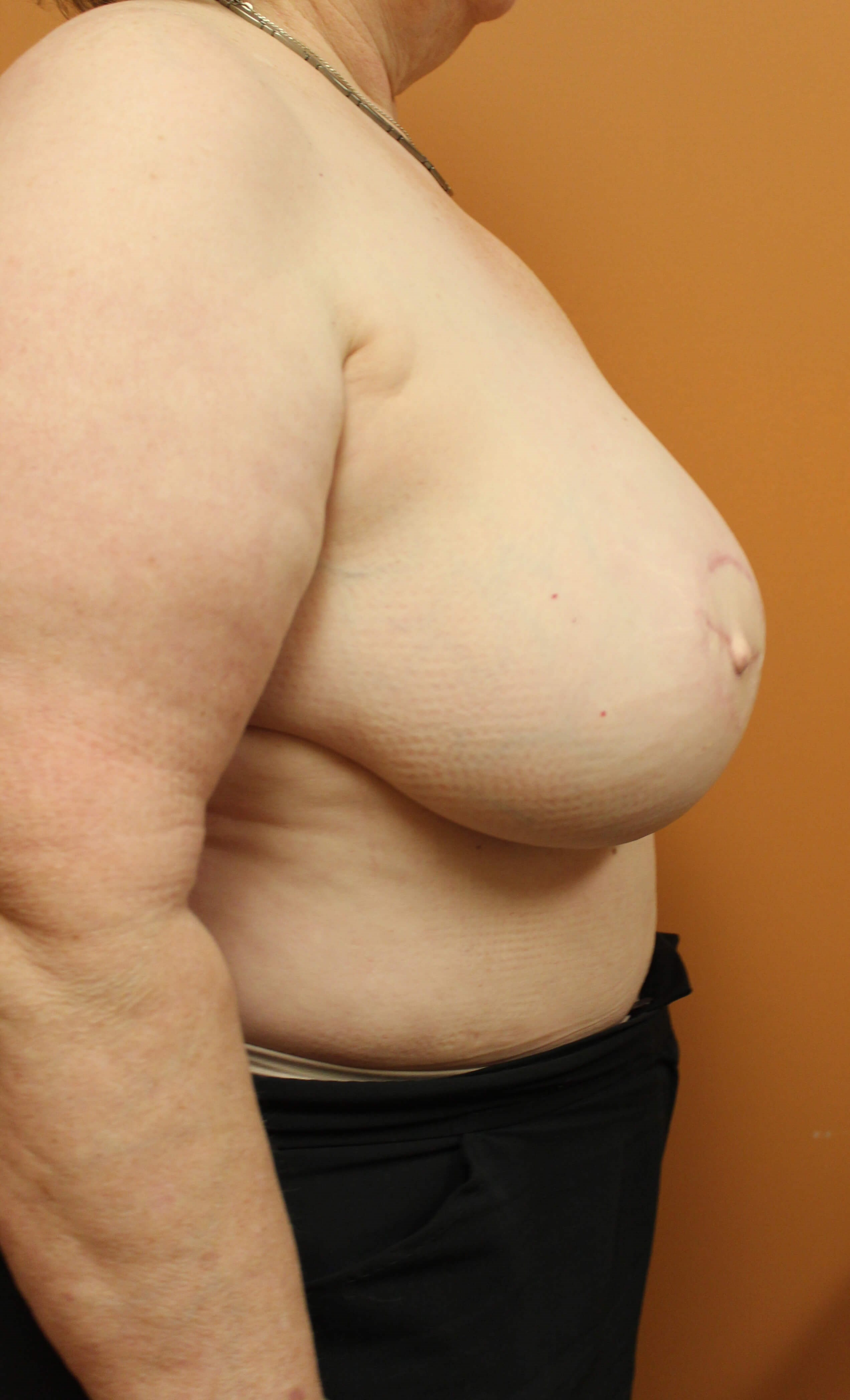 DIEP Flap Breast Surgery After