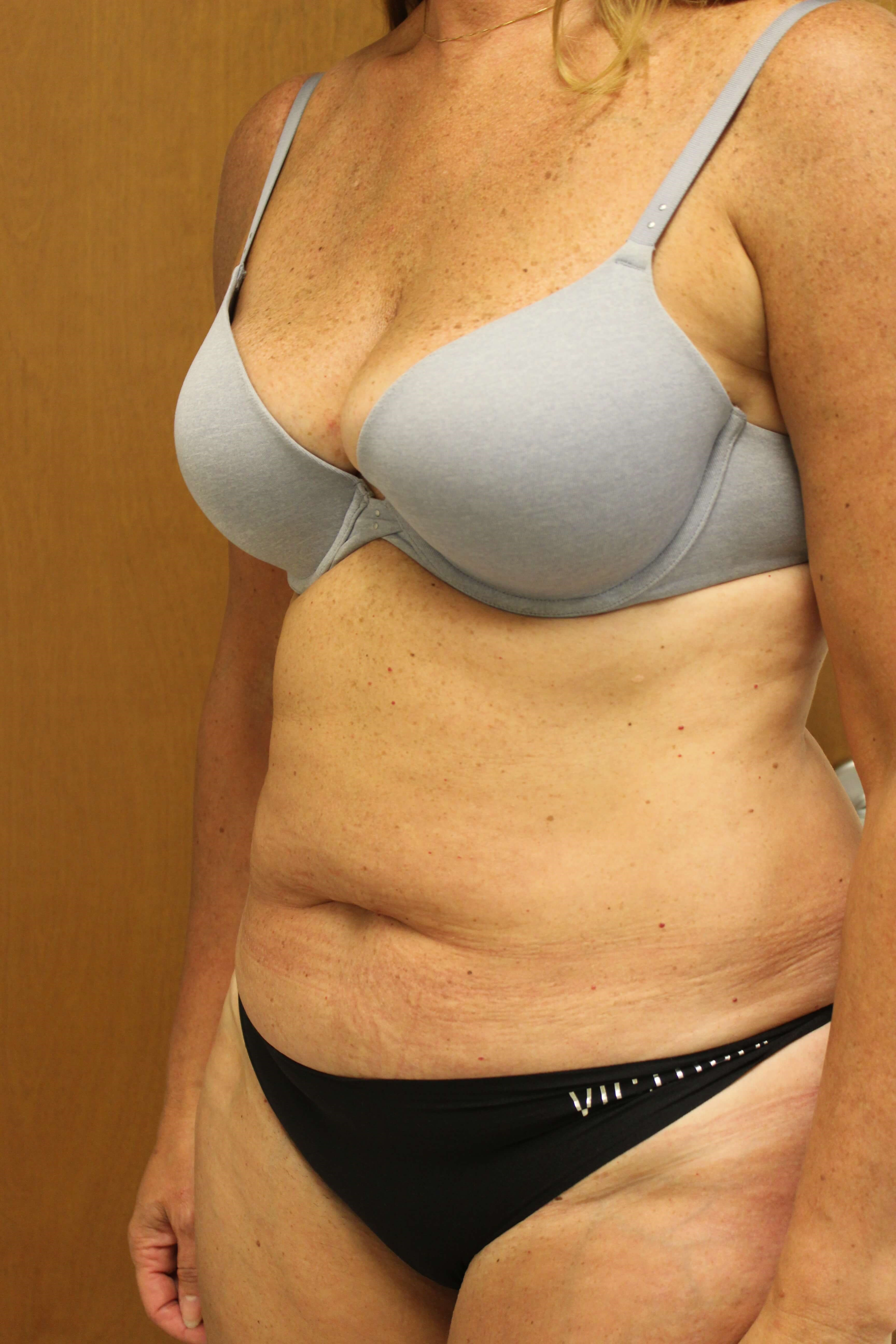 Tummy Tuck Surgery Before
