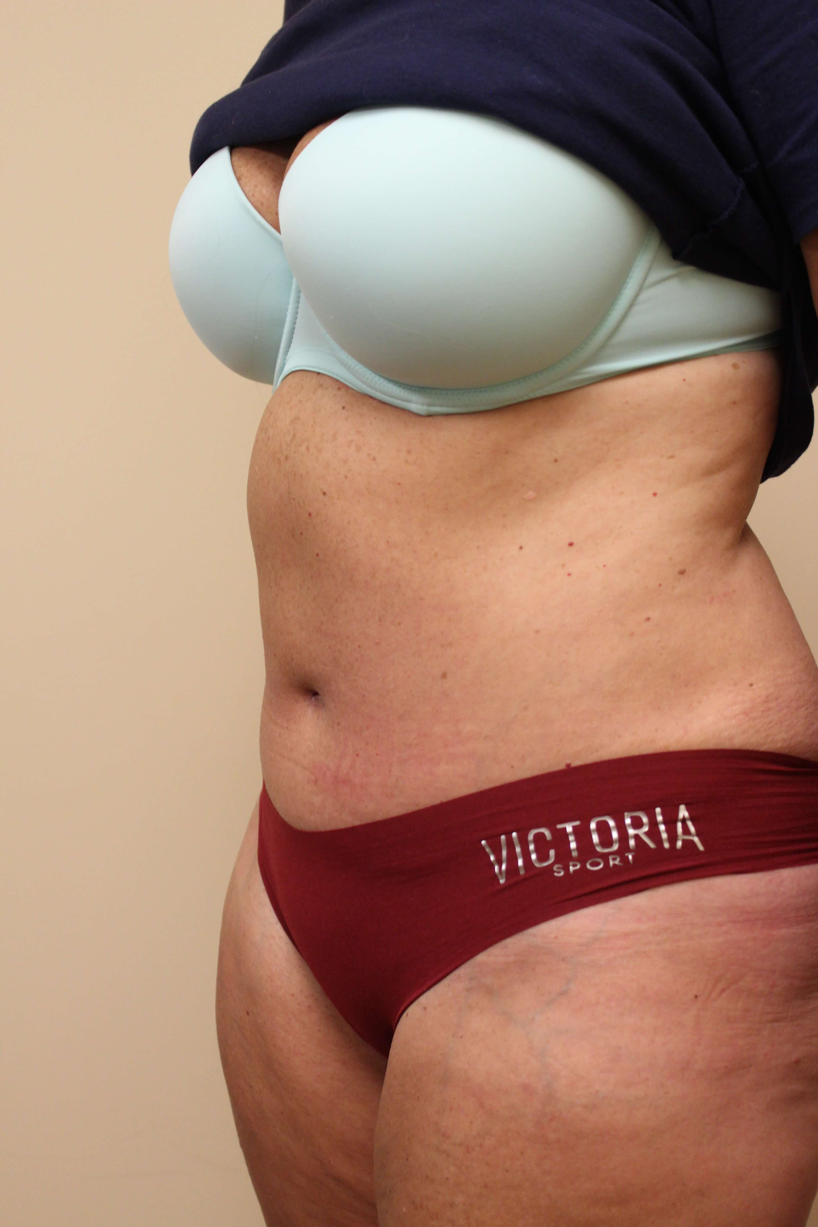 Tummy Tuck Surgery After
