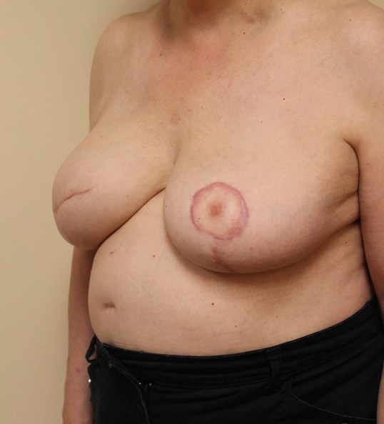 Nipple Reconstruction Before