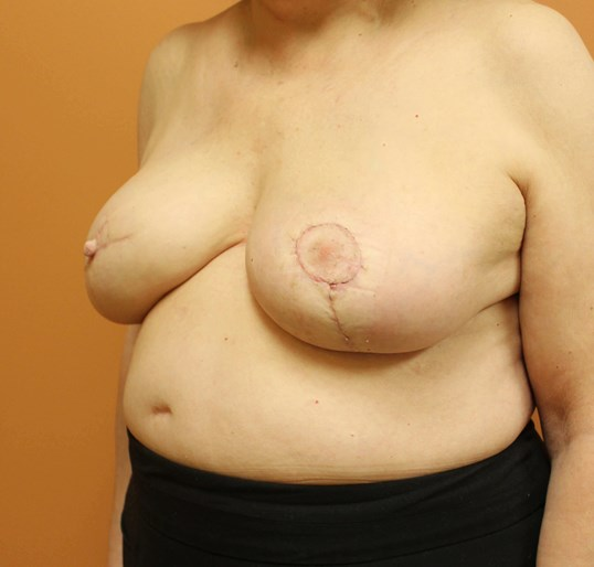 Nipple Reconstruction After