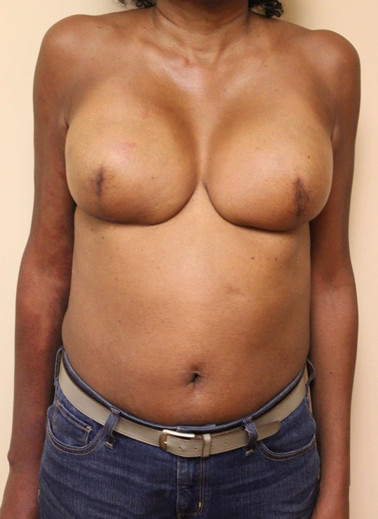 Breast Nipple Reconstruction Before
