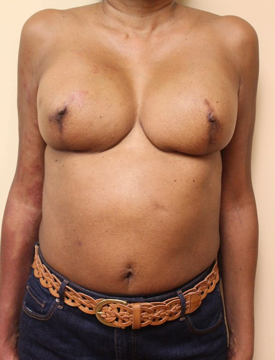 Breast Nipple Reconstruction After