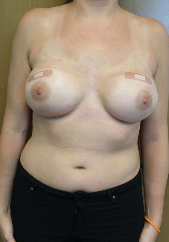 Prophylactic Reconstruction After