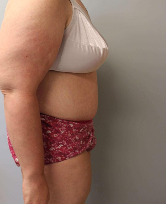 Tummy Tuck after weight loss After