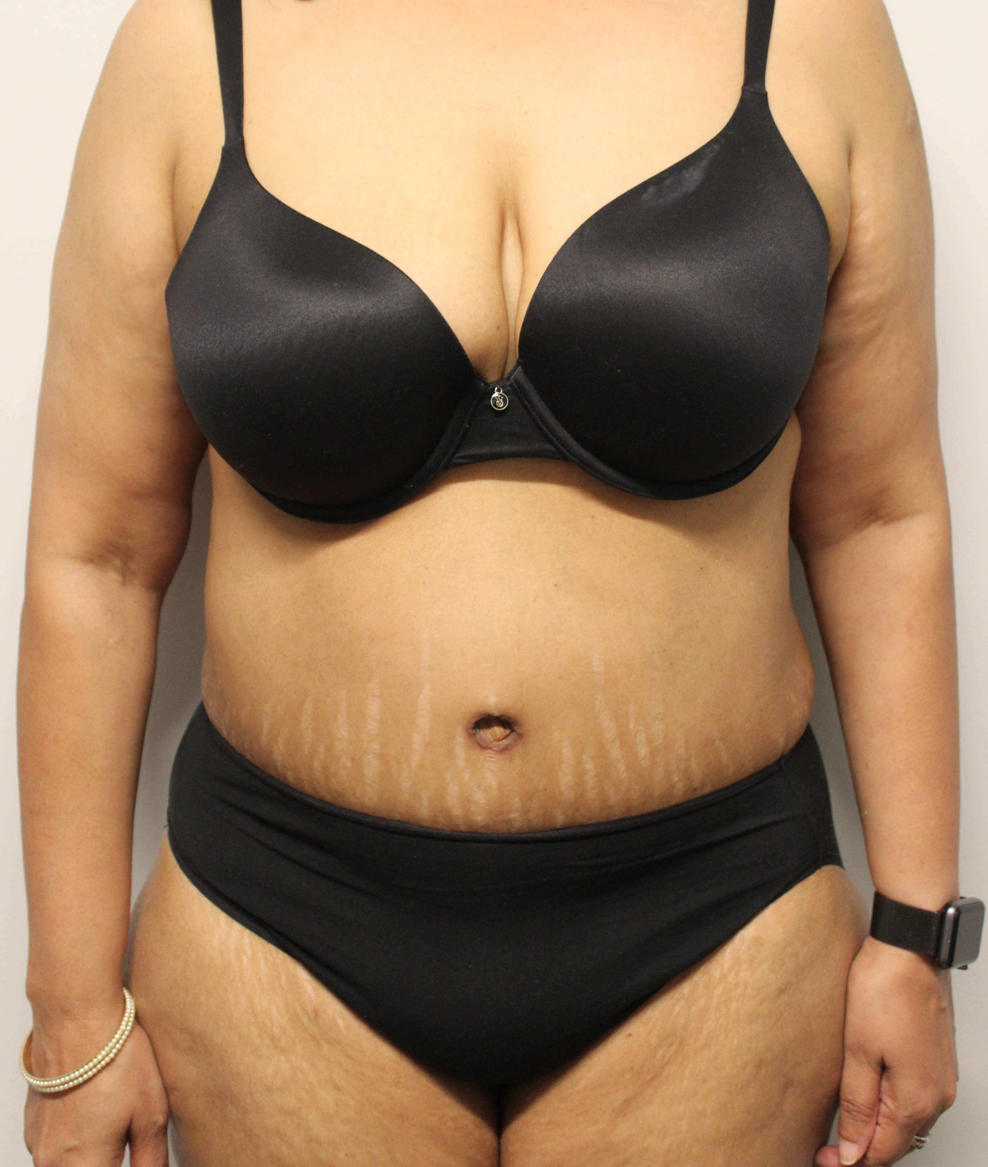 Abdominoplasty Surgery After