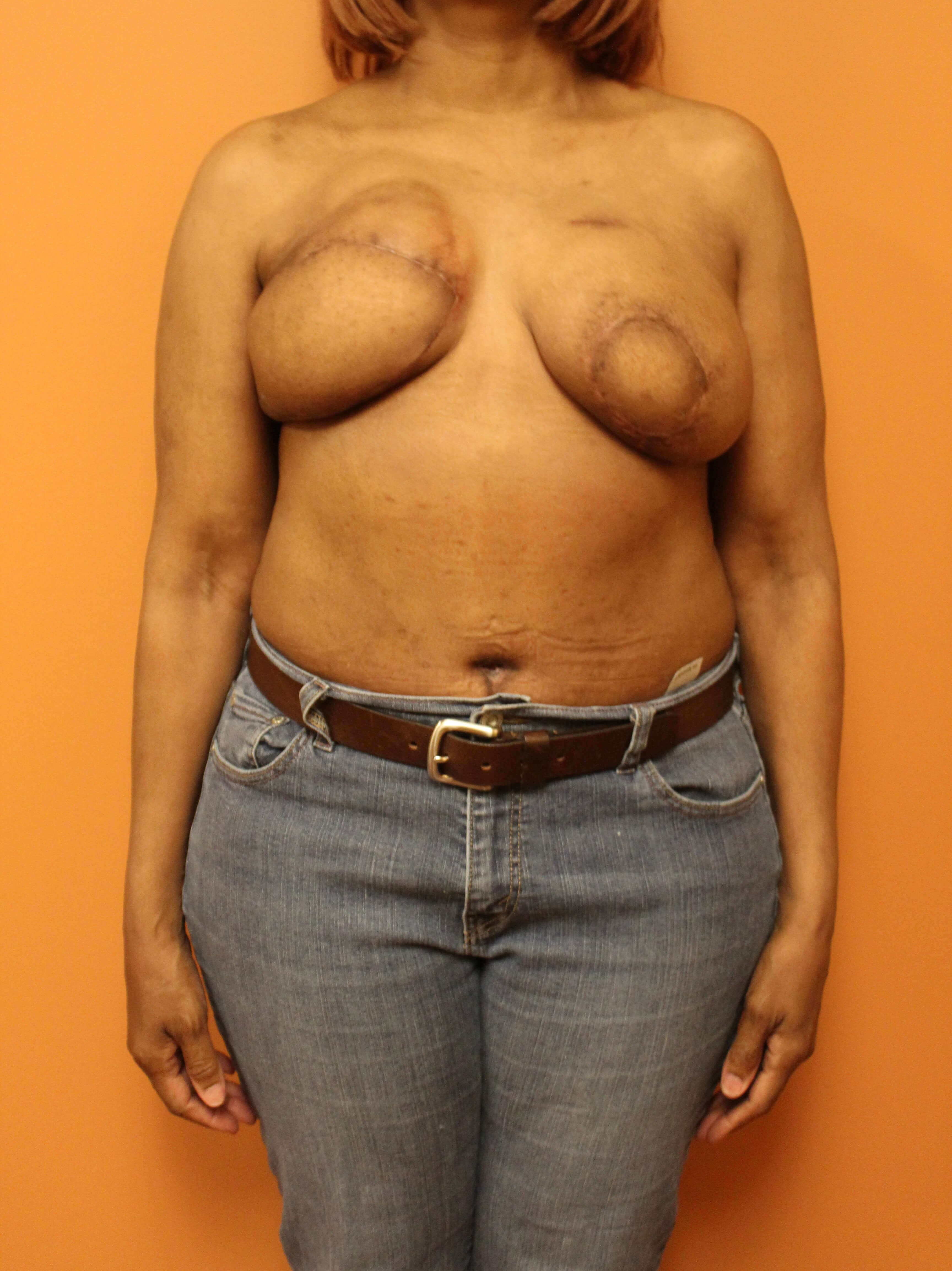 Delayed Breast DIEP Flaps After