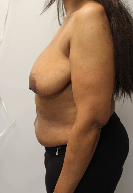 Delayed Breast DIEP Flaps Before