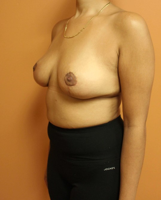 Breast Reduction Surgery After