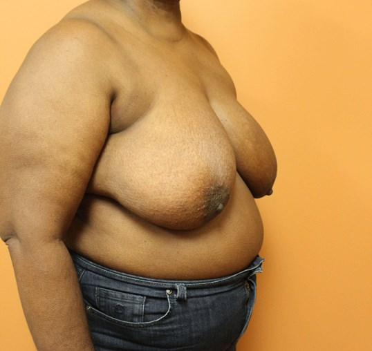 Oncoplastic Breast Reduction Before